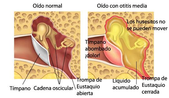 Infección de oído en adultos