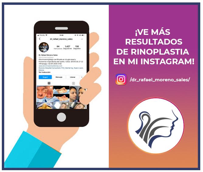 Rafael Moreno Instagram